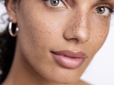 Regenererende formel til stresset hud